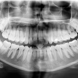 x-ray of full mouth