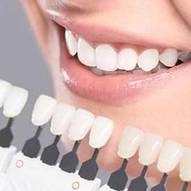 teeth whitening in Petaluma California