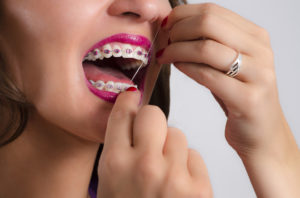 braces flossing woman