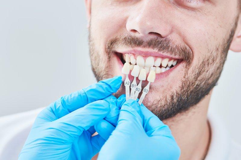 dentist color-matching temporary veneers